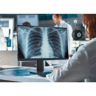 VUNO chest x-ray